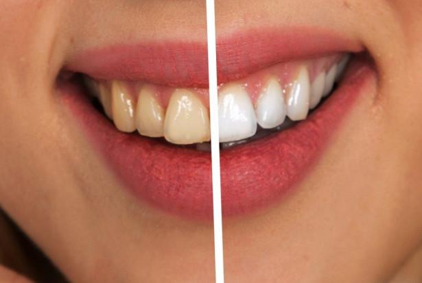 Pandemia zwiększa popularność stomatologii estetycznej