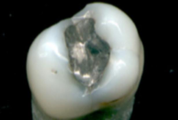 Siedmiu posłów: KS NRL hamulcowym w sprawie amalgamatu stomatologicznego