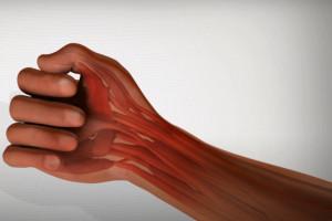 Rękawice ochronne dla stomatologa na bóle rąk?