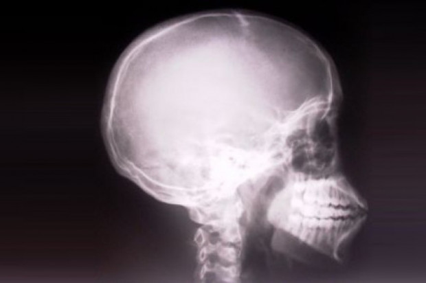 Punkty za szkolenia w zakresie ochrony radiologicznej: ile, kiedy i za co