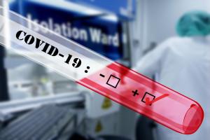 NRL apeluje do MZ o aktualne raporty na temat przypadków COVID-199 wśród personelu medycznego