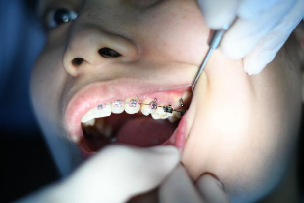 Koronawirus a częstotliwość wizyt u dentysty