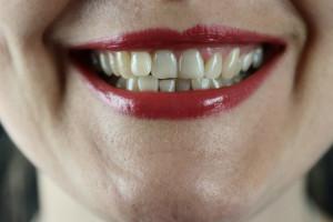 Stan zdrowia jamy ustnej zaczyna się w uzębieniu