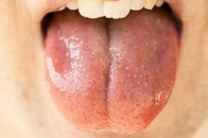 U dentysty testy ze śliny na koronawirusa