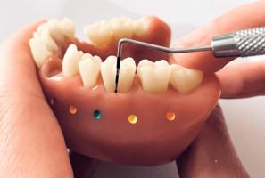 Modelowe badanie kieszonek zębowych przy pomocy sondy