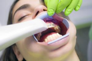 Wysoki odsetek dentystów zakażonych COVID-19
