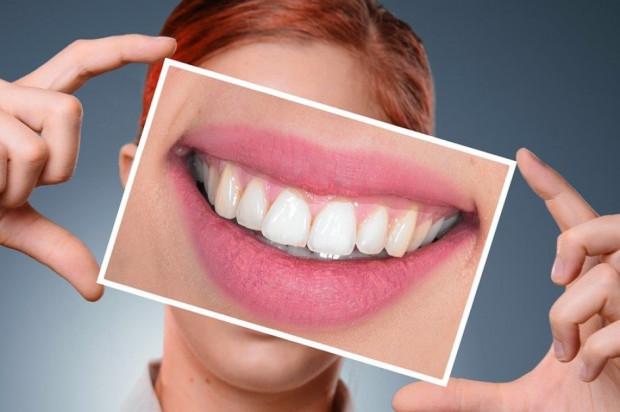Dentystka funduje nowy uśmiech wart 10 tys. dolarów