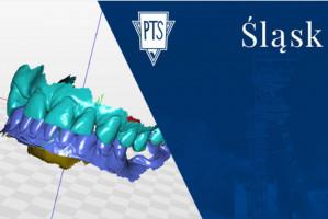 Śląski PTS organizuje webinar ze stomatologii cyfrowej