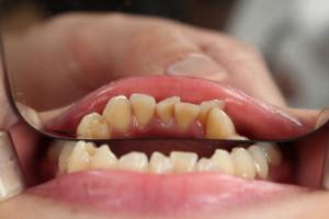 Dentysta wynalazcą sposobu na kserostomię