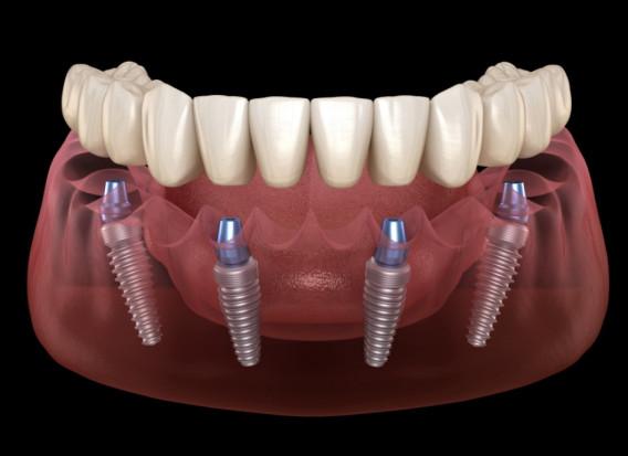 Metody regeneracji kości i tkanek oraz estetyka w implantologii