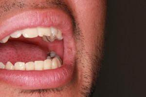 Ozdrowieńcy: problemy ze zdrowiem jamy ustnej