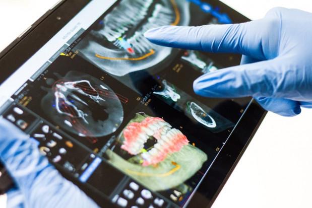 Miniimplanty: kierunek w stomatologii