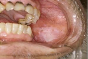 O raku jamy ustnej mówi się w kwietniu