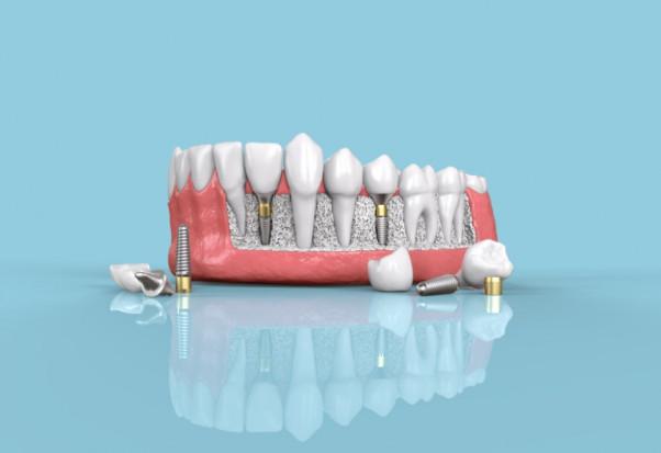 Unikatowe materiały stomatologiczne z lubelskiego centrum badawczego