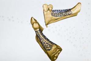 Stomatologia: krakowskie osiągnięcia w technologii 3D