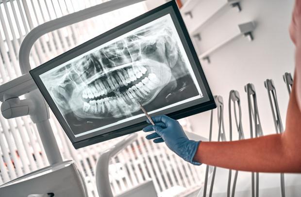 Urządzenie radiologiczne w gabinecie stomatologicznym