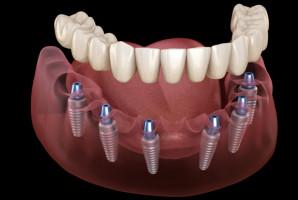 Stomatologia: membrana usprawniająca regenerację kości