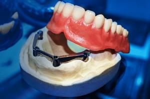 Zortrax Dental puka do drzwi lecznic stomatologicznych