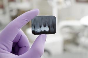 Podkarpackie: konkurs ofert na leczenie stomatologiczne