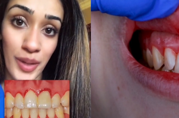 Zęby to znakomity test ciążowy?