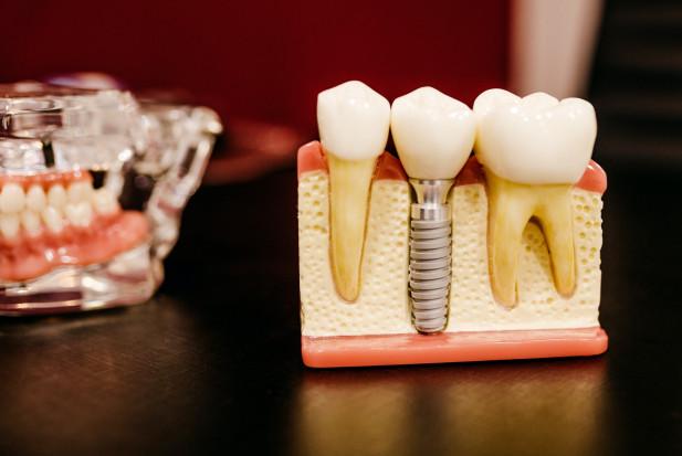 Implanty zębowe a  ryzyko powikłań