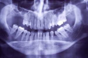 Gdy na leczeniu grube pieniądze tracą dentysta i jego pacjent