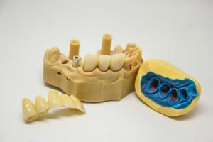 UMB: limity przyjęć na techniki dentystyczne i higienę stomatologiczną