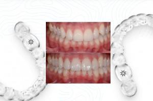 Invisalign: o tym każdy ortodonta powinien wiedzieć