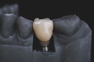 Bezpieczeństwo implantów u chorych na osteoporozę