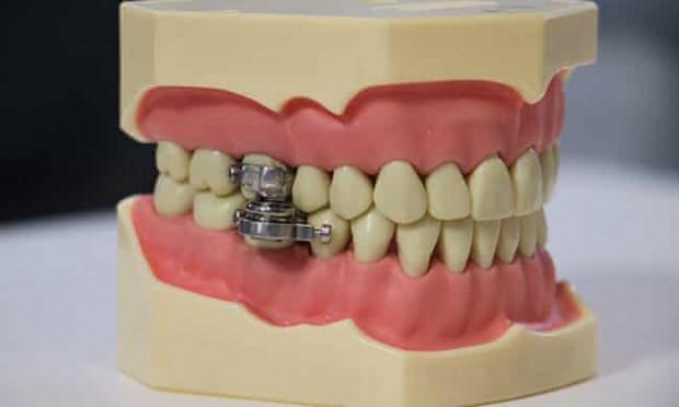 DentalSlim Diet Control wytwór chorej wyobraźni?