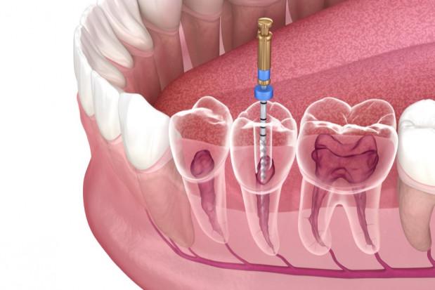 DIL organizuje bezpłatny kurs z endodoncji
