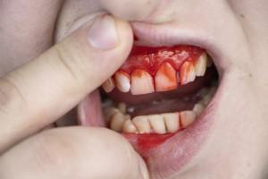 Uraz zęba: jakie leczenie i kiedy