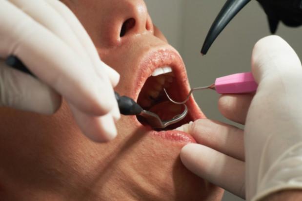 Co w projekcie zarządzenia prezesa NFZ na temat świadczeń stomatologicznych