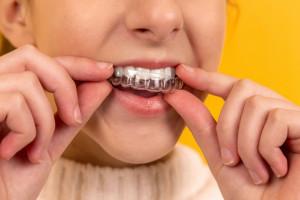 Co pacjent powinien wiedzieć w trakcie leczenia ortodontycznego