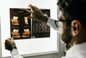 UM w Lublinie: dla asystentów praca na stomatologii