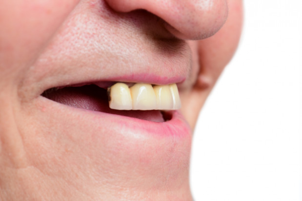 FDI poszukuje ekspertów zajmujących się zdrowiem jamy ustnej