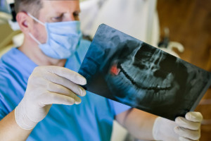 RTG w stomatologii: wyposażenie i kwalifikacje - nowe wymogi