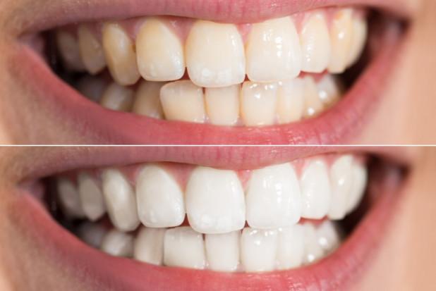 Towarzyski sukces gwarantują wybielone zęby