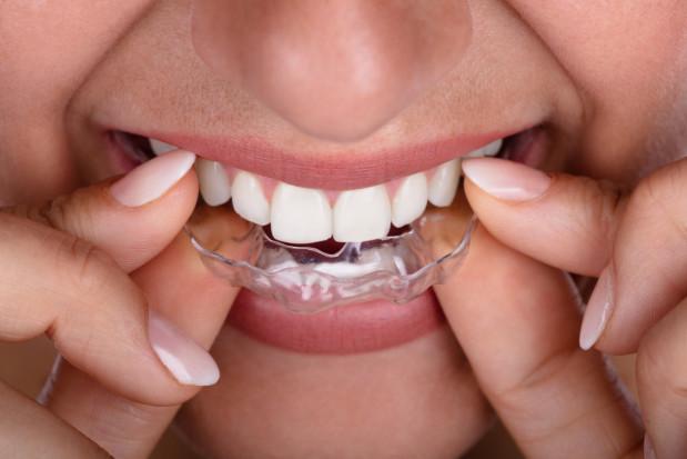 Ortodontyczne leczenie z jednoczesnym wybielaniem
