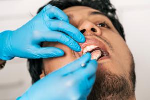Koronawirus: skrajne postawy pacjentów
