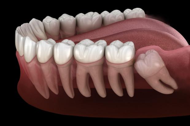 Różne strategie usuwania zębów mądrości