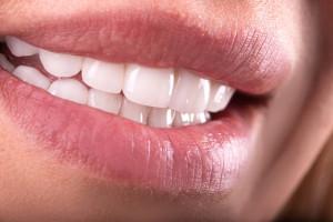 Rośnie rynek nielegalnych środków do wybielania zębów
