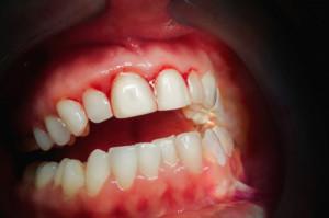 Naukowcy: utrata kości w parodontozie powodowana przez bakterie