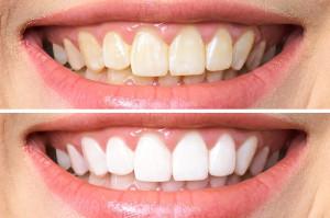 Zęby z natury są żółte