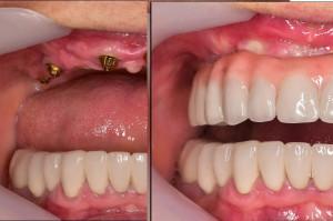 Implanty zębów dla seniorów i nie tylko